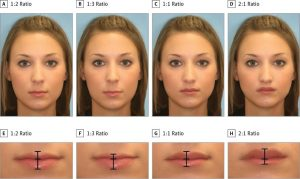 lippen-eine-neue-studie-verraet-die-perfekte-lippenform-healthexperts-net