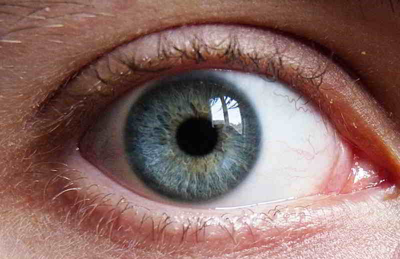 Beliebteste Schönheits-OP unter den Männern: Augenlidstraffung