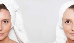 Hautverjüngung für perfekte Haut