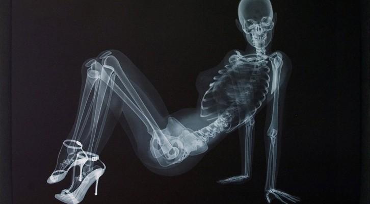 Röntgen-bis-auf-die-knochen-premium-health-guide